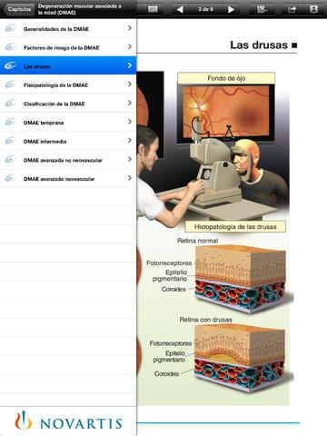Degeneración macular asociada a la edad for iPad