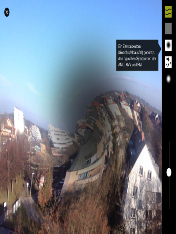 SibA – Simulation bei Augenerkrankungen for iPad