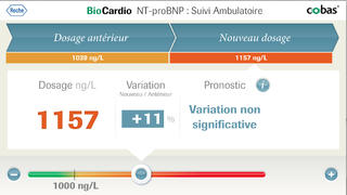 BioCardio for iPhone