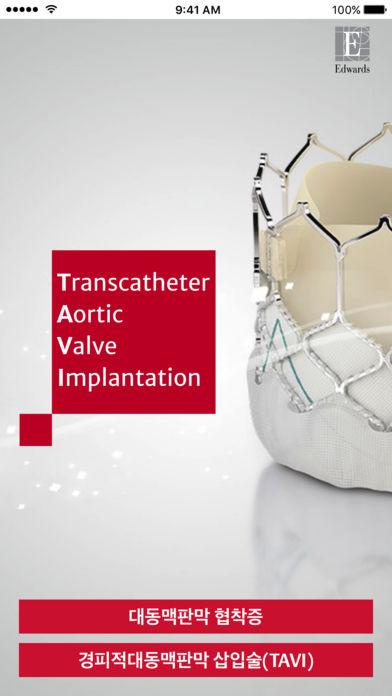경피적 대동맥판막 삽입술(TAVI) for iPhone