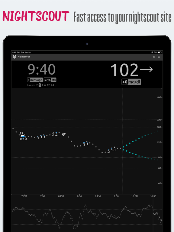 nightguard for iPad