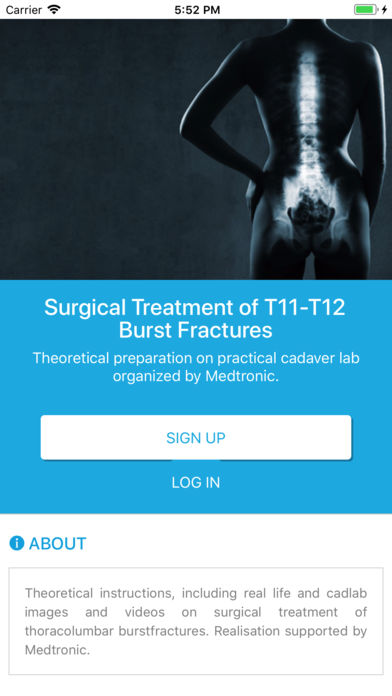 Thoracolumbar Burst Fracture for iPhone