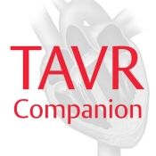 Edwards TAVR for iPhone