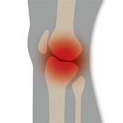 変形性ひざ関節症説明ツール for iPhone