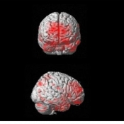 Documentation Imaging of Pain